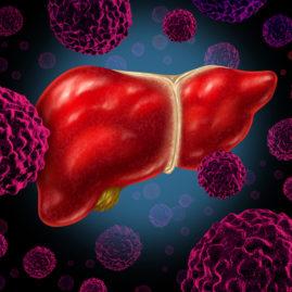 Human Liver Cancer - Cyberknife OC