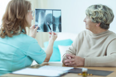 Spinal Cancer Treatment Orange County