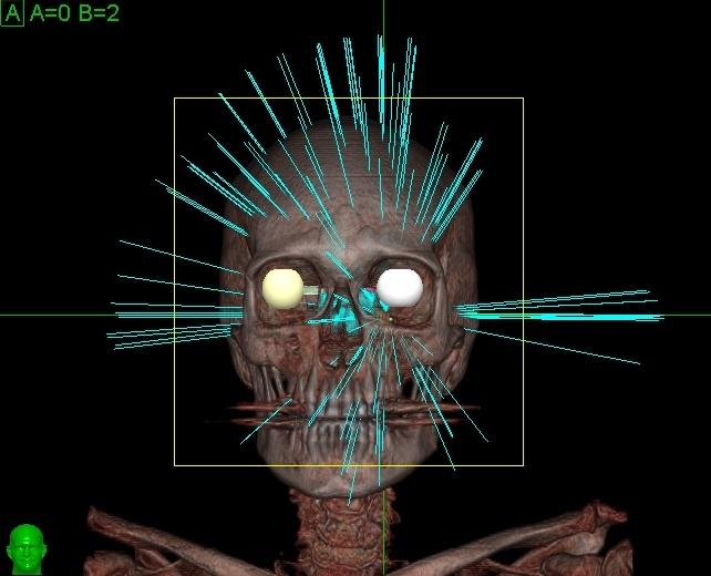 Study Shows CyberKnife Effective Against Trigeminal Neuralgia