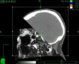 Sagittal view of Trigeminal Nerve