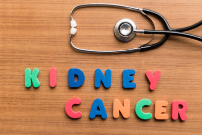 Kidney Cancer Treatment- Cyberknife OC