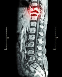 Spine metastasis